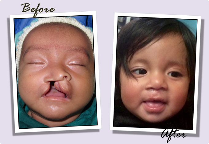 Cleft Palate Surgery Salt Lake City Utah